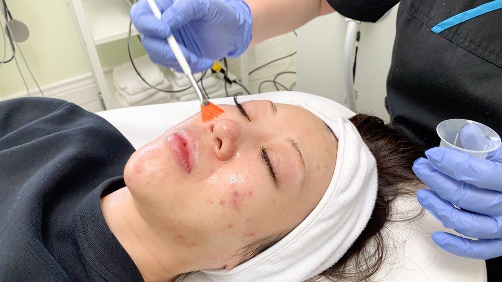 chemical peels acne treatment