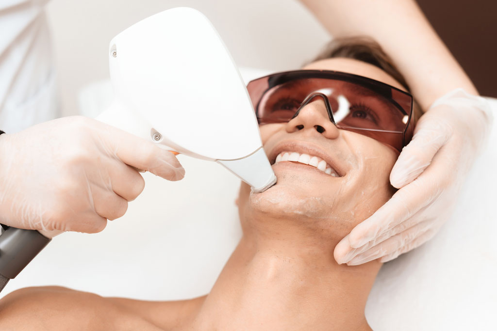 Facial laser hair removal for women