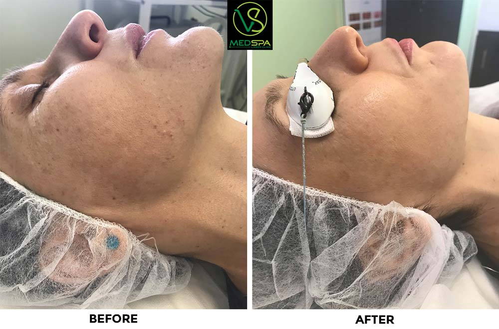 ipl photo facial before after results