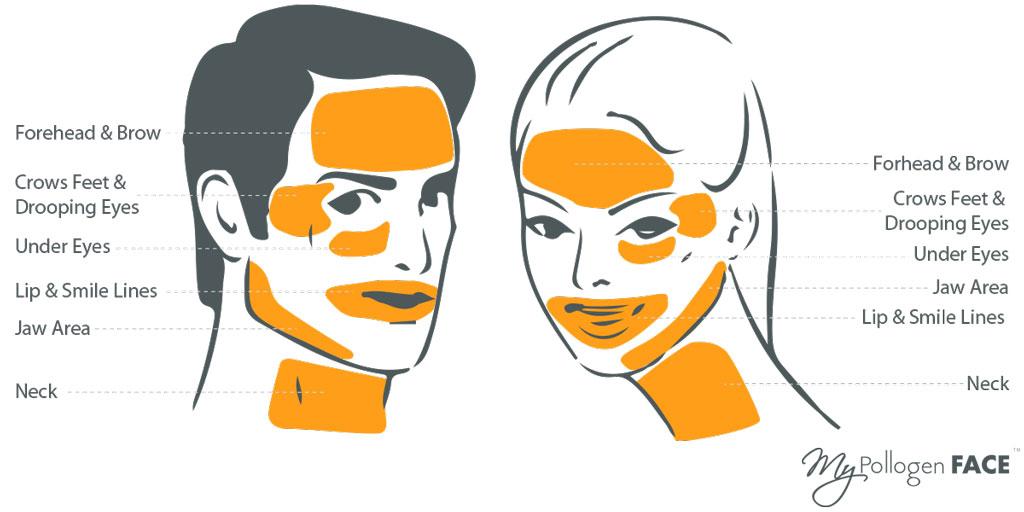 skin tightening face areas