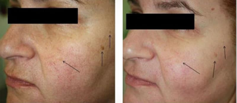 oxygeneo before and after age spots