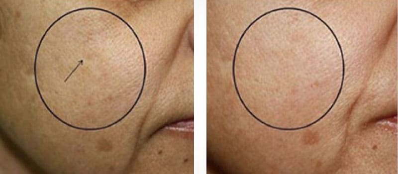 oxygeneo before and after scars