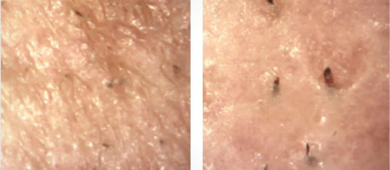 oxygeneo before and after texture