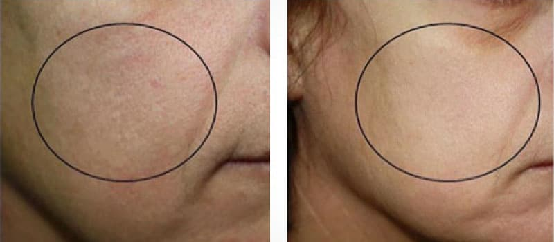 oxygeneo before and after redness