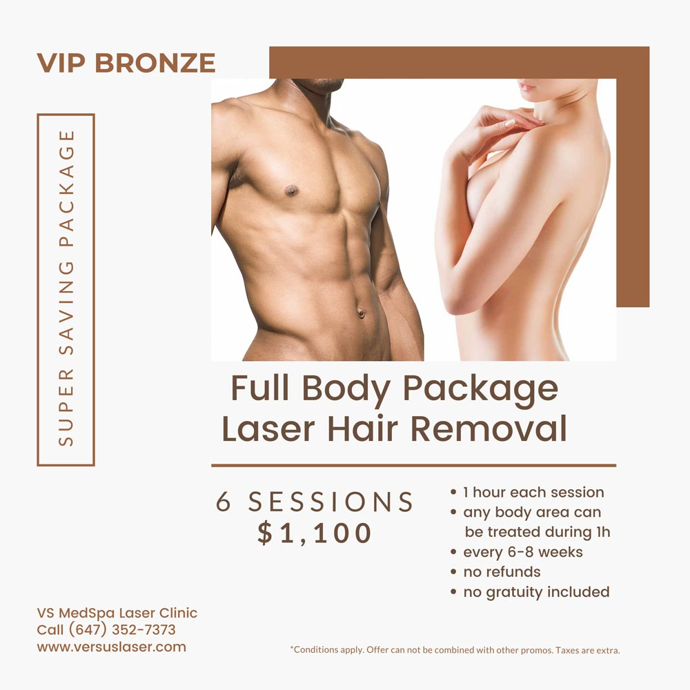 Full body laser hair removal package 6 sessions