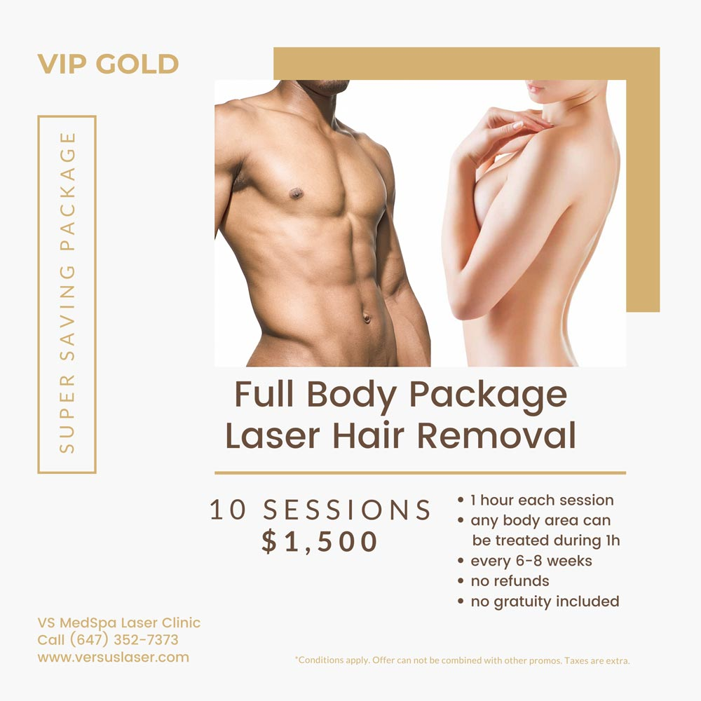 Full body laser hair removal package 10 sessions