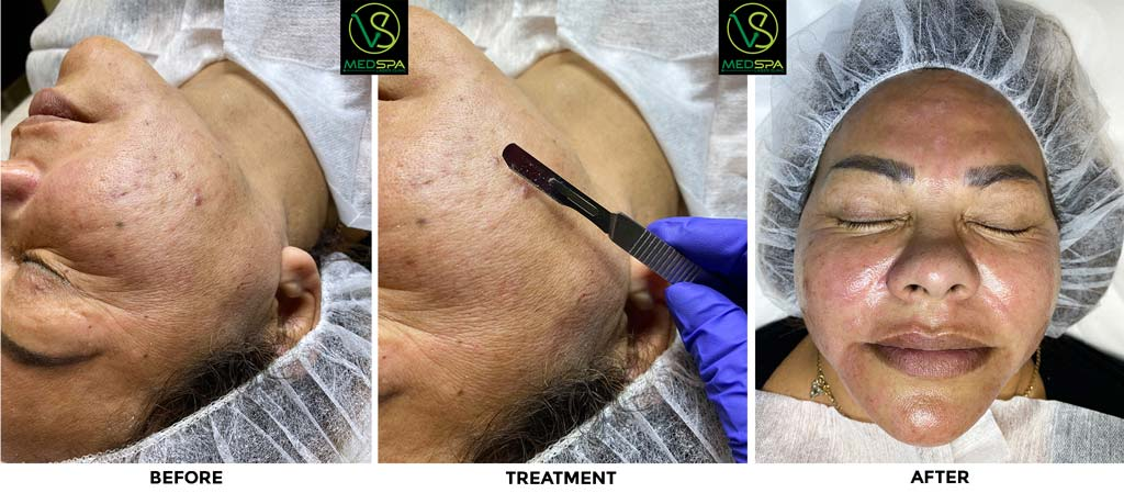 Dermaplaning before after frost