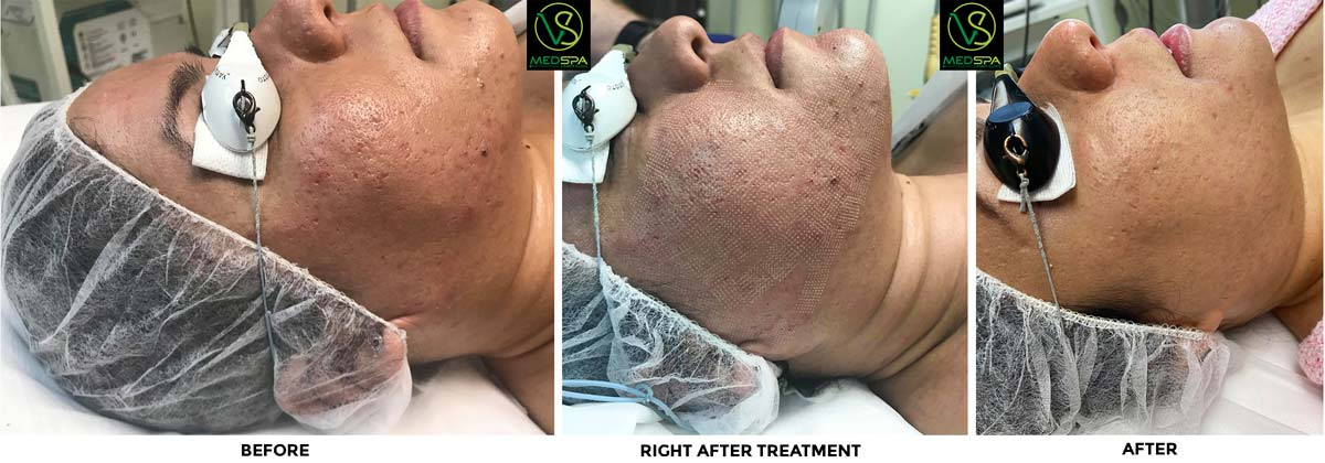 Fractional laser facial before & after