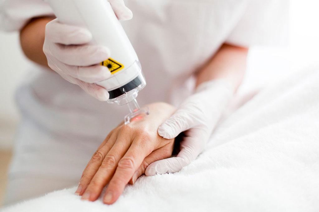 PIXEL fractional laser skin resurfacing hands