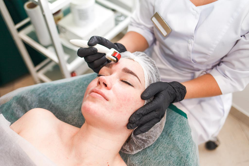 facial procedure dermo roller woman beauty salon