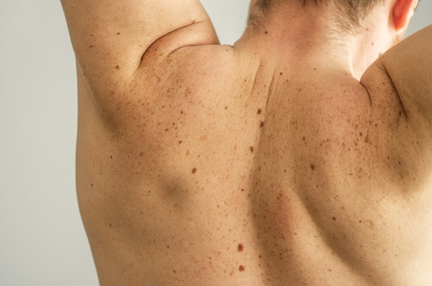 man back with scattered moles