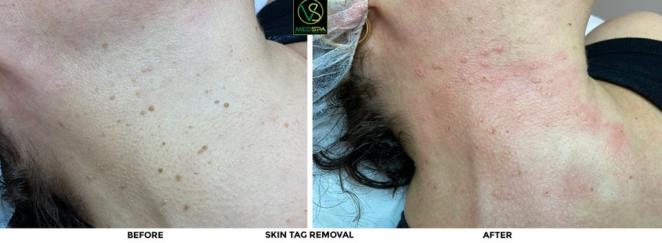 skin tag removal before and after neck
