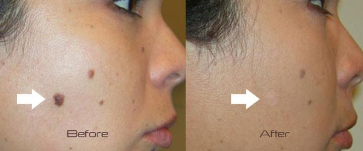 mole removal cosmetic results