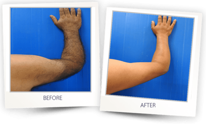 LASER HAIR REMOVAL ARMS BEFORE AFTER
