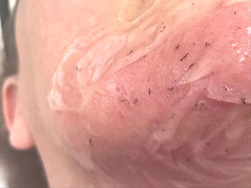 LASER HAIR REMOVAL BEFORE AFTER PHOTOS CHIN