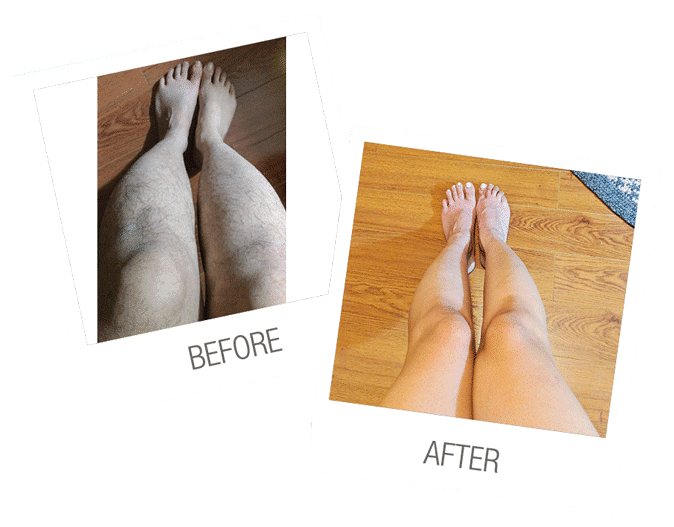 LASER HAIR REMOVAL LEGS BEFORE AFTER