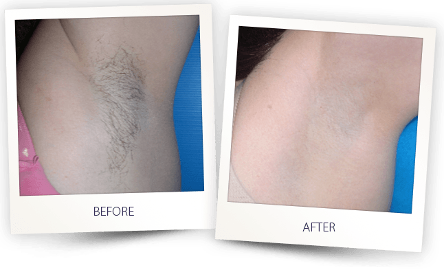 LASER HAIR REMOVAL UNDERARMS BEFORE AFTER