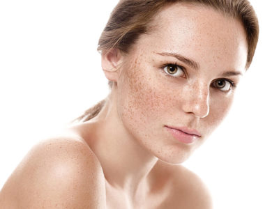 PIGMENTATION AND MELASMA