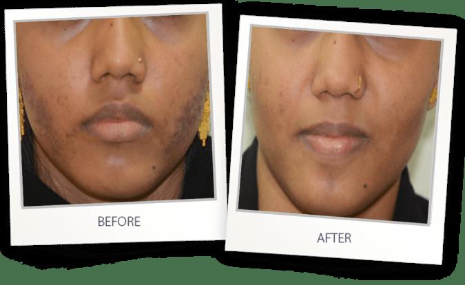 acne treatment on face