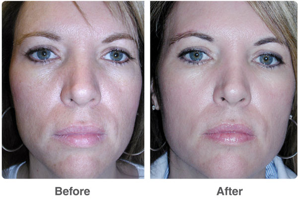 C-INFUSION FACIAL before and after