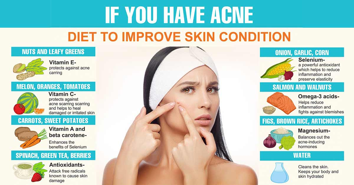 Foods That Kill Acne