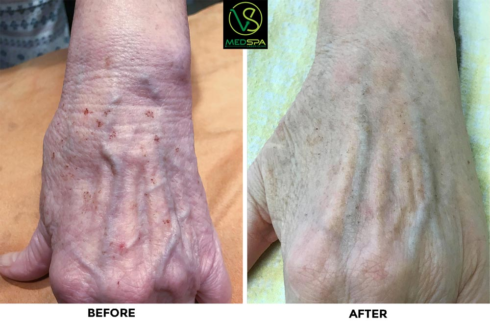 ipl hands before and after photos
