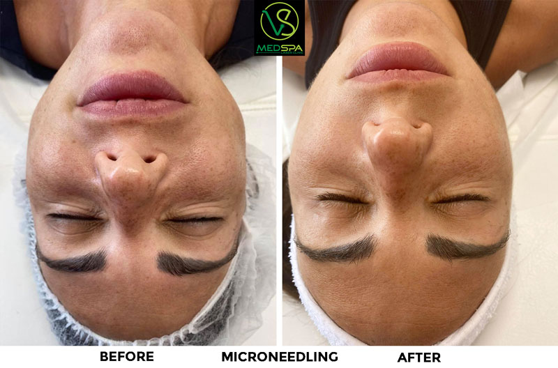 microneedling facial before and after