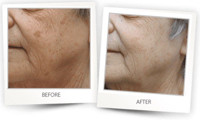 pigmented lesions treatment on face