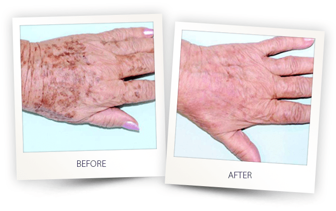 pigmented lesions treatment on hands