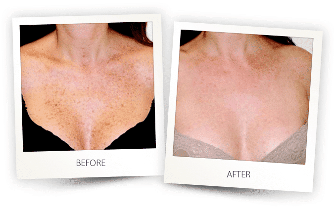 pigmented lesions treatment on chest
