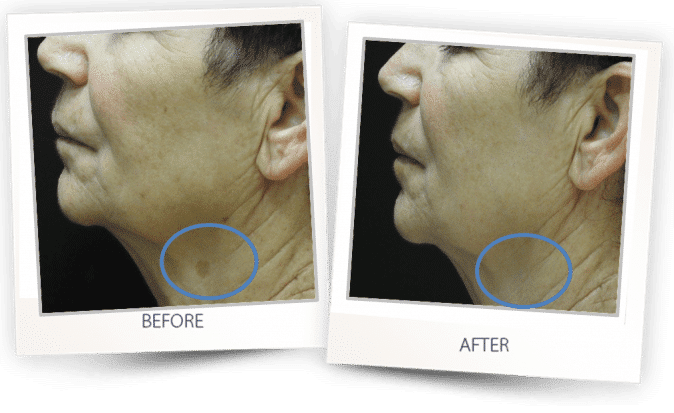 pigmented lesions treatment on neck