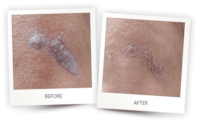laser resurfacing of scars