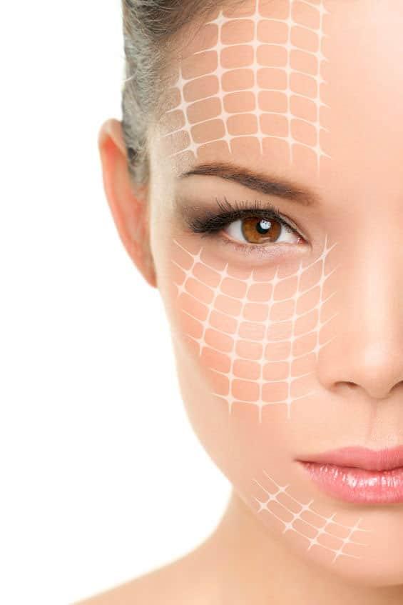 Skin tightening treatment