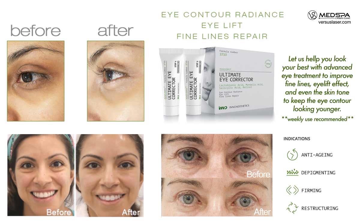 ultimate eye corrector Innoaesthetics