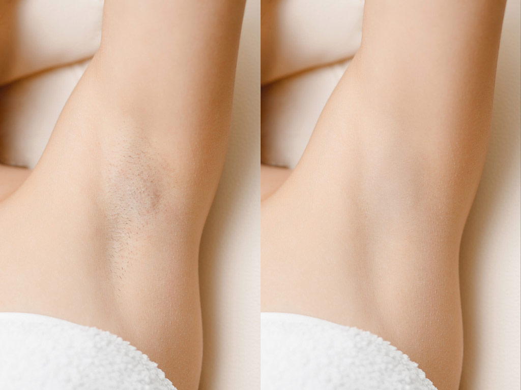 armpit laser hair removal before and after