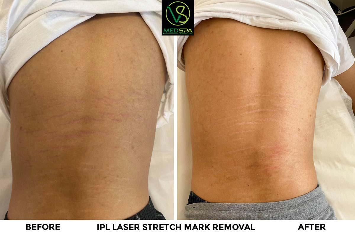 IPL laser stretch mark removal on back