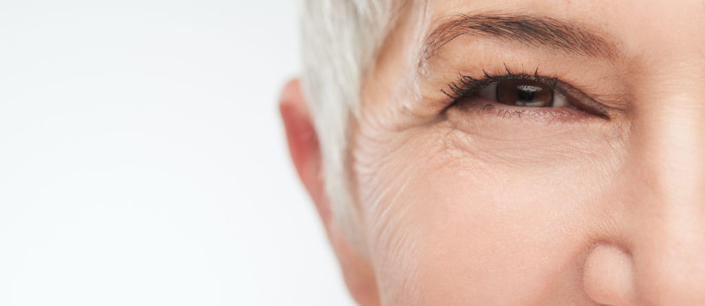 All about Wrinkles and Fine Lines