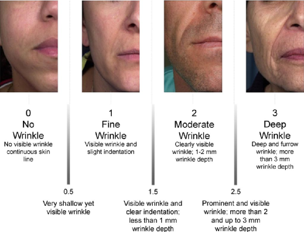 classification of wrinkles by Fitzpatrick